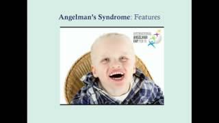 Angelman's Syndrome - CRASH! Medical Review Series
