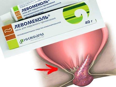 ★Чудо-Мазь ЛЕВОМЕКОЛЬ, не только сражается с инфекцией и воспалением, но и лечит ГЕМОРРОЙ.