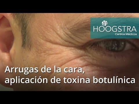 Arrugas de la cara, aplicación de toxina botulínica (18027)