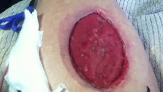 Wound Vac Dressing Change 1 (Warning Graphic)