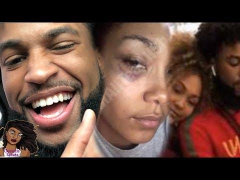Parker McKenna's Family Upset After She Get's Black Eye After Chris Sail's Breakup