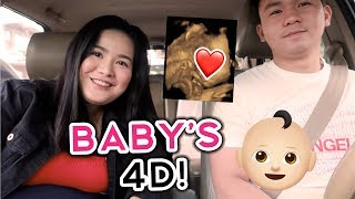 BABY'S 4D ULTRASOUND! FACE REVEAL!!