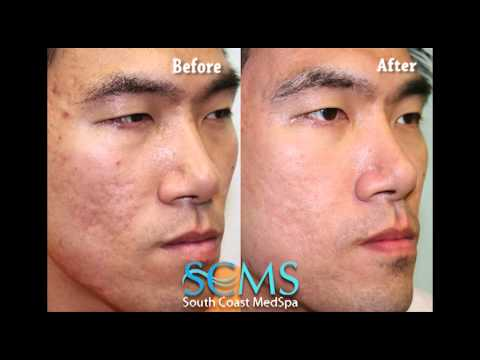 Before/After Asian Male Newport Beach Laser Acne Scar Removal