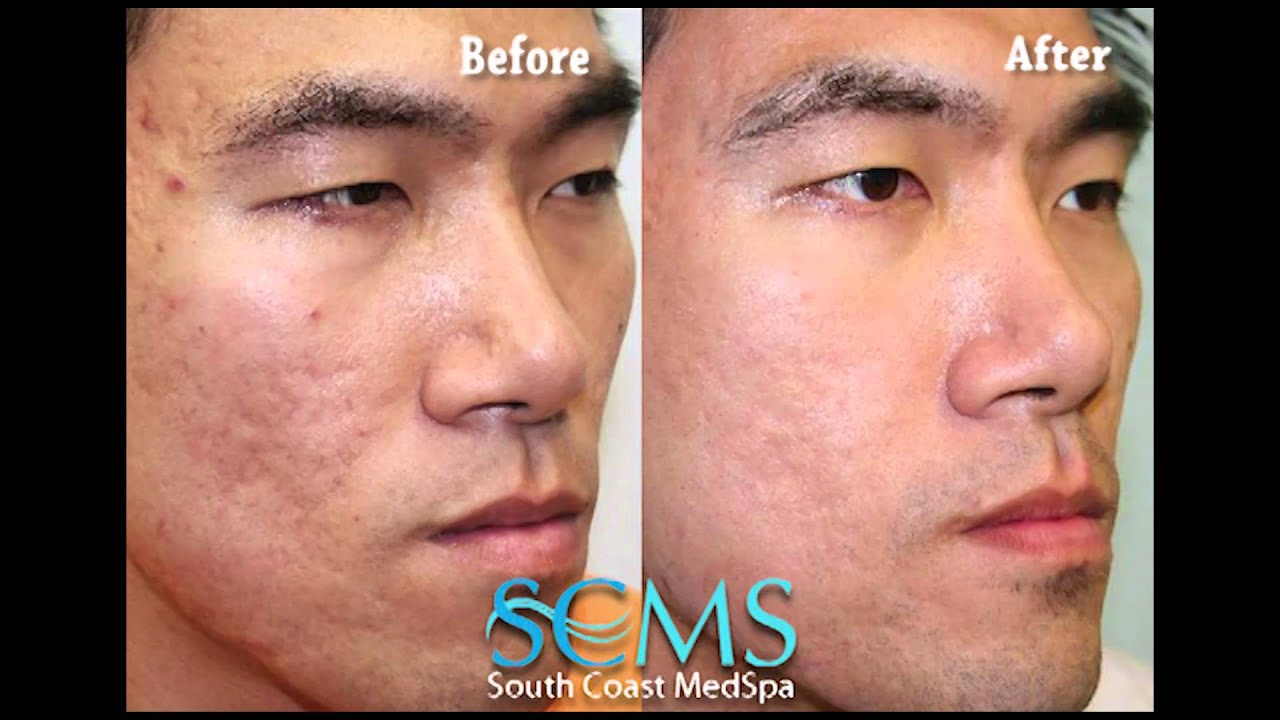 laser treatment for face review