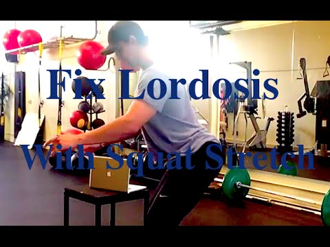 How To Fix LORDOSIS With The SQUAT (Stretch)