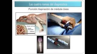 2016/07 - Leucemia Promielocítica Aguda
