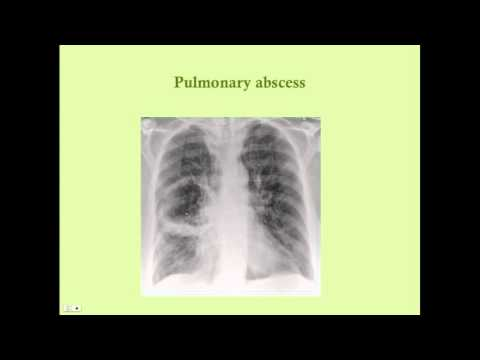 Pulmonary Infections - CRASH! Medical Review Series