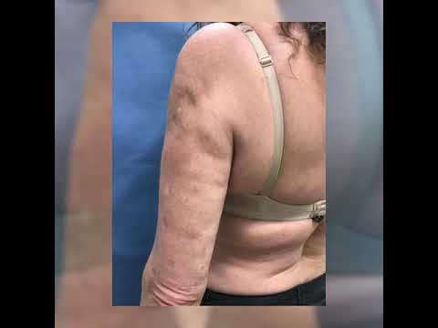 Must See Before and After Upper Arms Lipo Dr. Thomas Barnes Newport Beach Cosmetic Surgeon! Amazing!