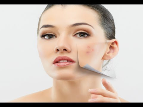 How to Avoid Acne with Healthy Diet