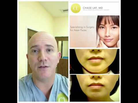 Face Slimming - Non Surgical Jaw Reduction