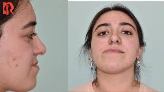Bir Çene Estetiği Öyküsü \u0026 Çene Ameliyatı Öncesi ve Sonrası