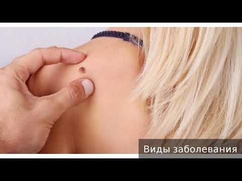 Кератома. Как лечить кератому.