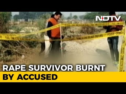 Rape Survivor, Set On Fire On Way To Court In UP's Unnao, Walked 1 Km For Help