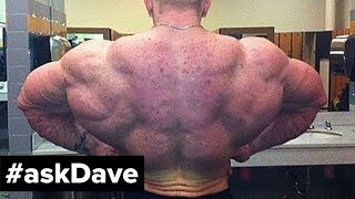 BACK ACNE SOLUTION! #askDave