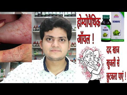 Homeopathic medicine for Itching ? खुजली की होम्योपैथिक दवा !
