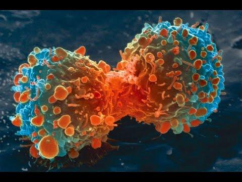 توريث سرطان المبيض ليس حكرا على الأمهات  - نشر قبل 15 ساعة