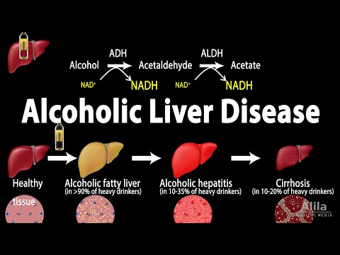 Alcoholic Liver Disease, Animation