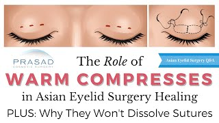 Why Warm Compresses in 2nd Phase of Eyelid Surgery Healing Won't Dissolve Sutures