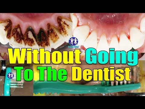 without Going to the dentist remove dantal plaque 5 min Naturrally super fast  STOP plaque now!