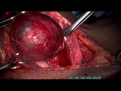 TOTAL-THYROIDECTOMY-DR GOUDA RAMESH ENT CENTRE