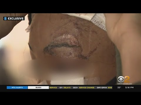 Exclusive: Woman Who Was Brutally Attacked Outside Harlem Liquor Store Speaks Out