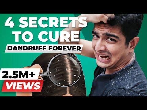 GOODBYE FOREVER, Dandruff - 4 SECRET Tips for Dandruff Removal   BeerBiceps Dandruff Treatment