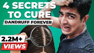 GOODBYE FOREVER, Dandruff - 4 SECRET Tips for Dandruff Removal | BeerBiceps Dandruff Treatment