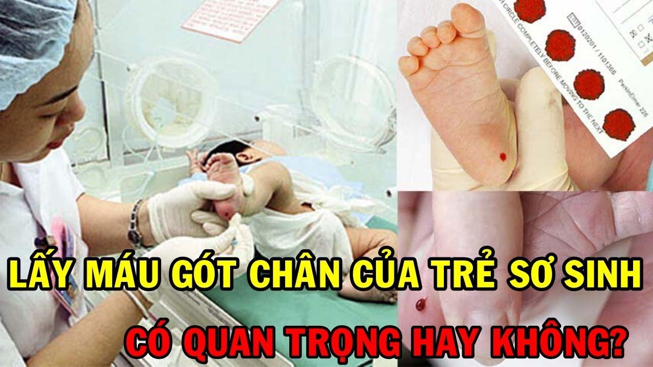 Lấy máu gót chân của trẻ sơ sinh có quan trọng hay không? Mọi thông tin