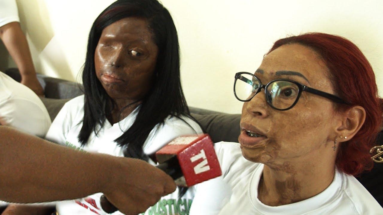 Visitamos a YOKAIRY joven quemada por antisociales ! PRIMERA VISITA