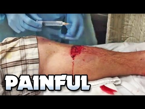 Painful Lacerations (Car Accident), Cysts, Boils & Injuries!