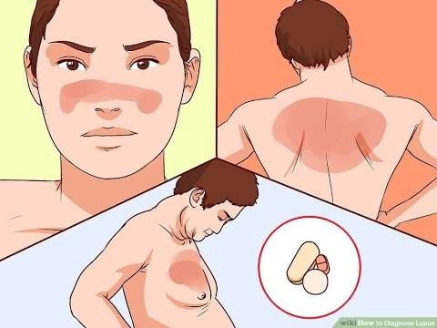 How to Diagnose Lupus - Blood Test for Lupus Anticoagulant by Human Healthy Life