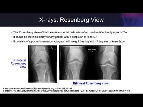 Knee Osteoarthritis: Examining The Evidence On Single-Injection Hyaluronic Acid