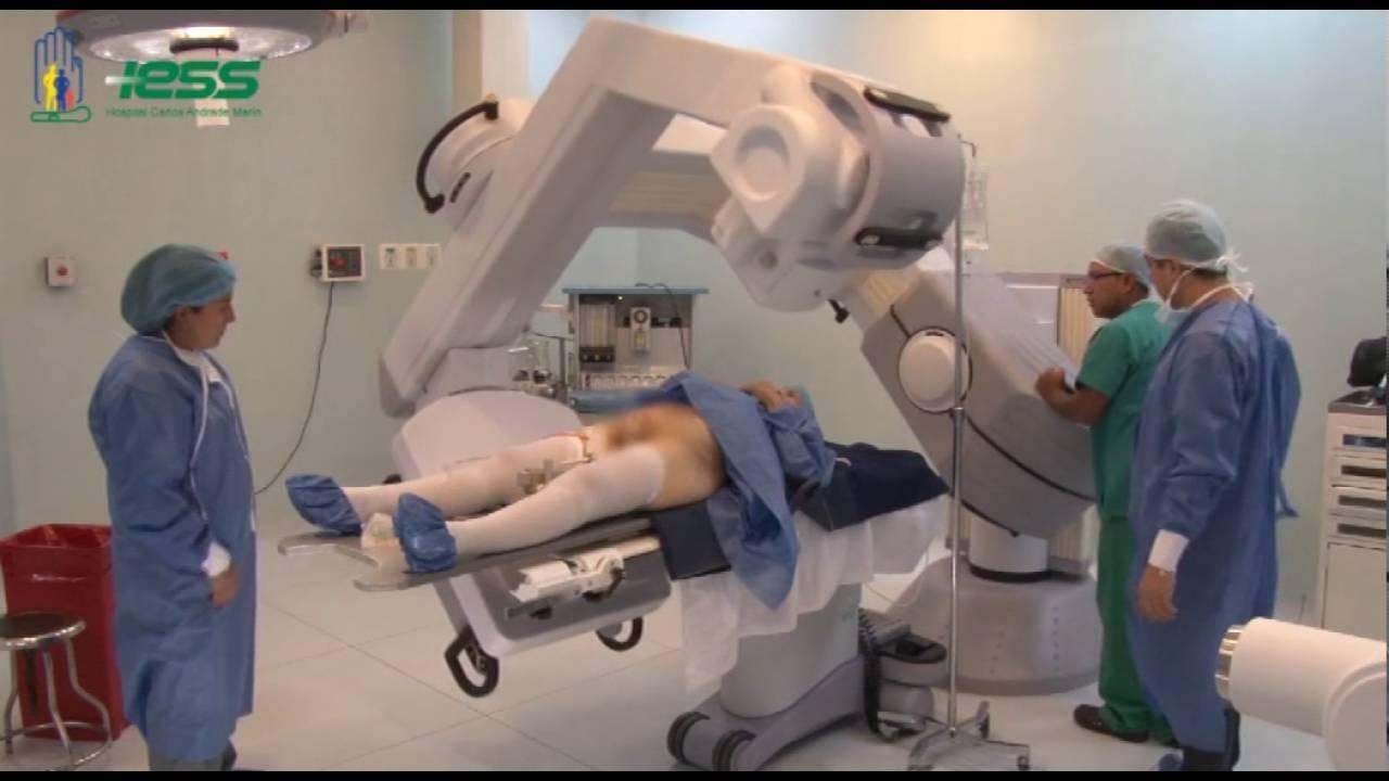 síntomas después de la radioterapia para el cáncer de próstata
