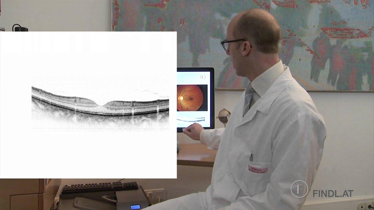 Epiretinal Membrane Macular Pucker Prof Findl Vienna Youtube
