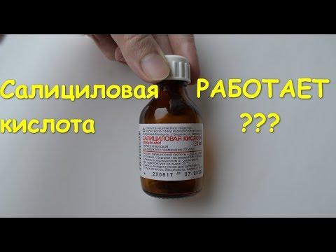 Салициловая кислота. Насколько действенна?!