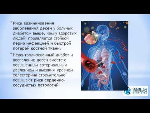 Cахарный диабет, десны и стоматологические импланты