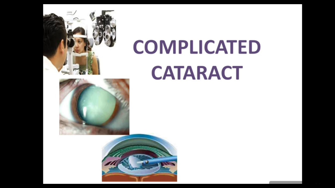 Cataracts typically progress slowly to cause