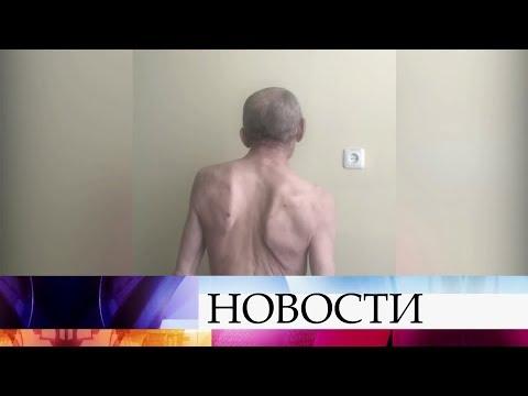 Врачам в Новосибирске удалось провести уникальную операцию на позвоночнике.