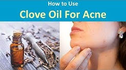 hqdefault - Oil Of Cloves Uses For Acne