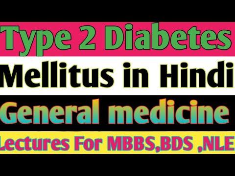 General medicine type 2 Diabetes mellitus