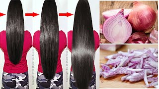 How To Grow Long and Thicken Hair Faster With Onion & Potato | Super fast Hair Growth Challenge