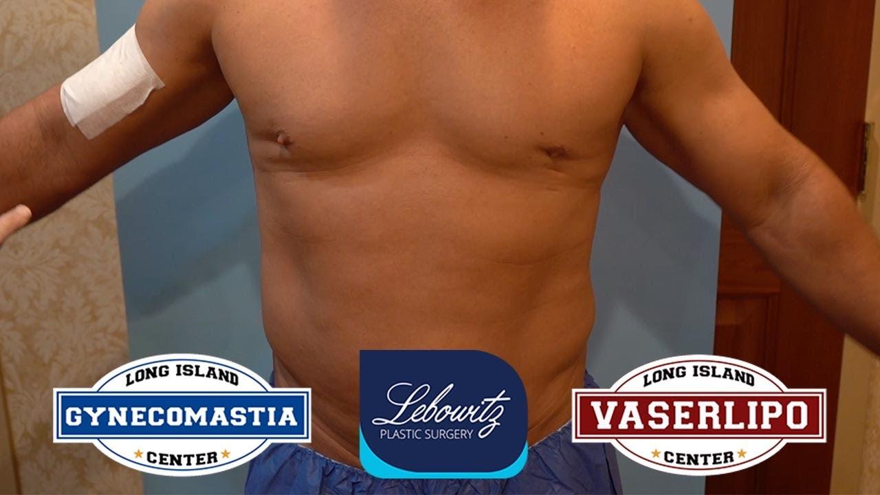 Gynecomastia Surgery on NY Male (50) Vaser Lipo, Renuvion & Fat Grafting