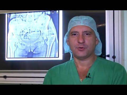 Эндопротезирование коленного сустава. Операция