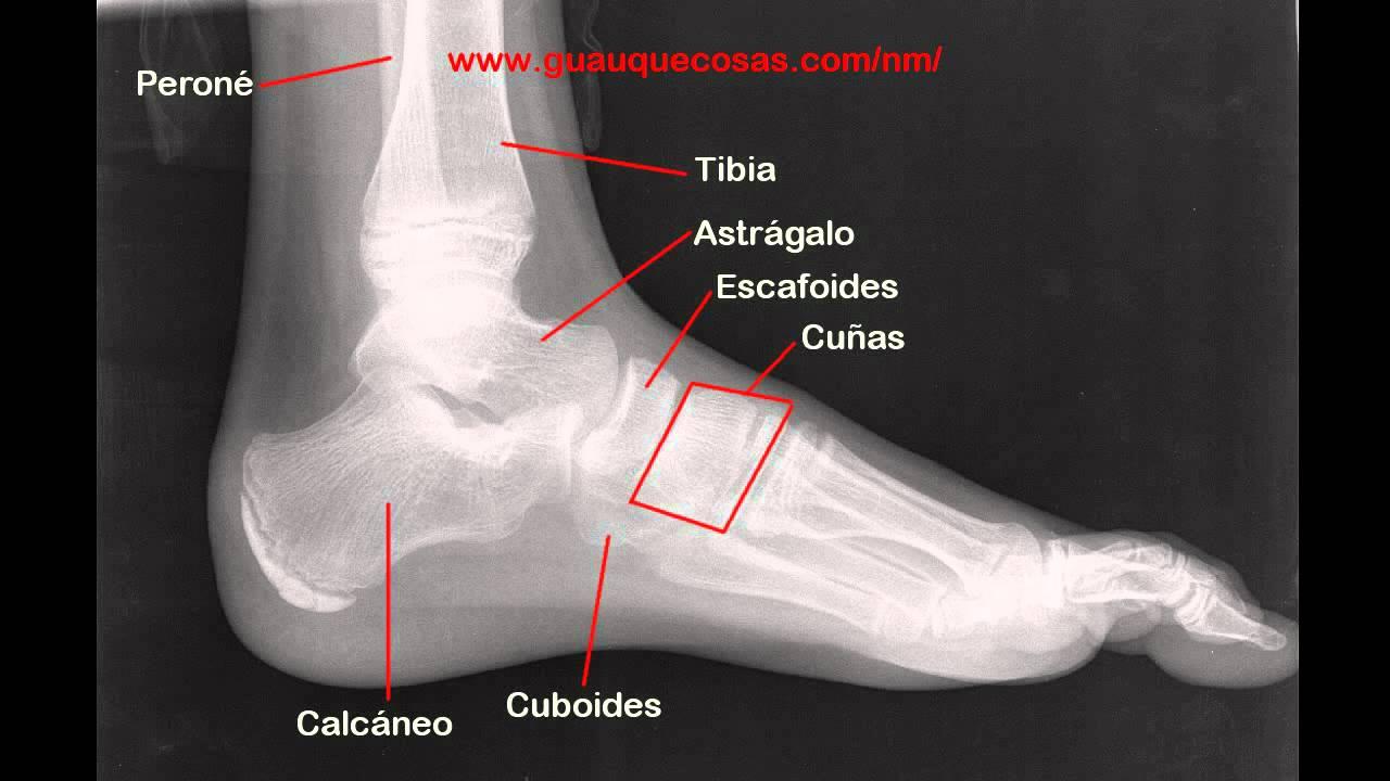 Radiografía y anatomía del pie de un niño de 12 años - YouTube