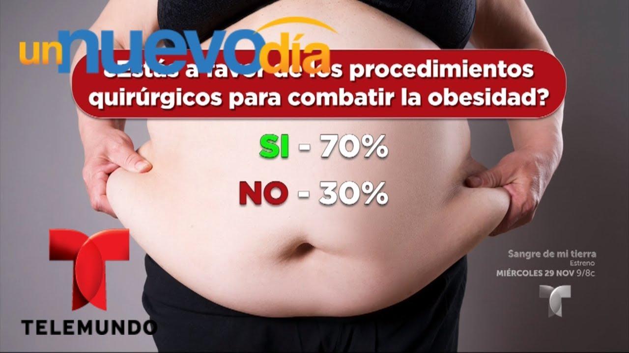 Dieta post cirugia bariatrica bypass