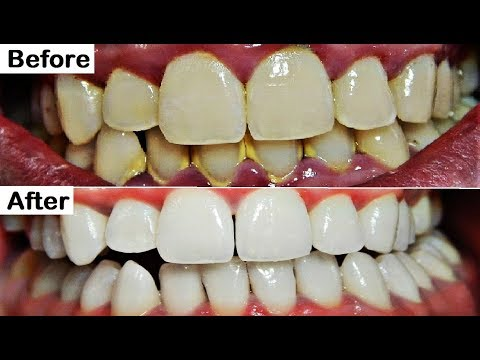 Remove Dental Plaque in 5 Minutes Naturally Without Going To The Dentist, Teeth Whitening at home