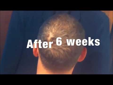 kirkland-minoxidil-5%-extra-strength-men-supply-hair-regrowth-solution