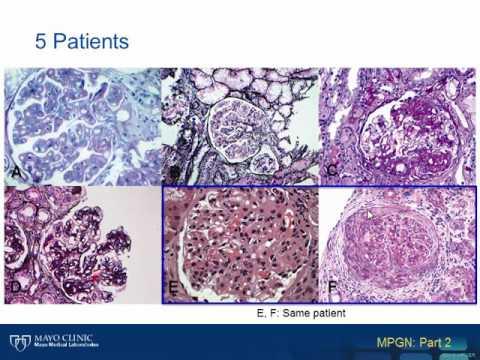 Understanding Membranoproliferative Glomerulonephritis Part 2 Hot Topic