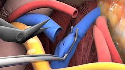hqdefault - Kidney Transplant Operation Video Surgeon Simulator