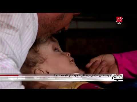 #يحدث_في_مصر | يوسف.. طفل ينتظر الموت أو المساعدة